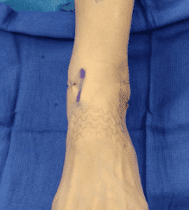 Post op ankle replacement