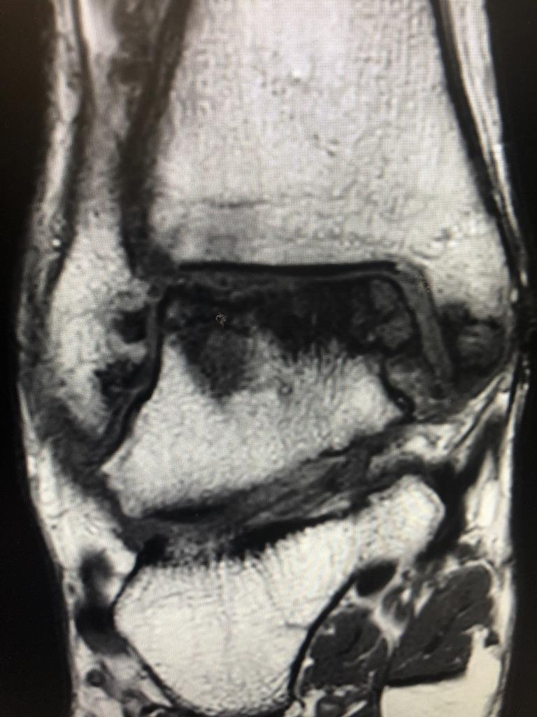 Avascular Necrosis MRI